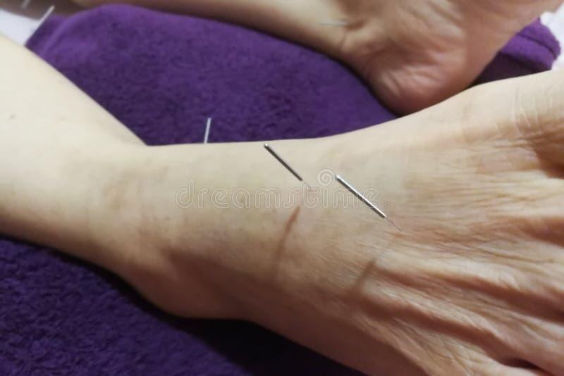 Akupunktury traktowanie - Chi?ska medycyna fotografia stock
