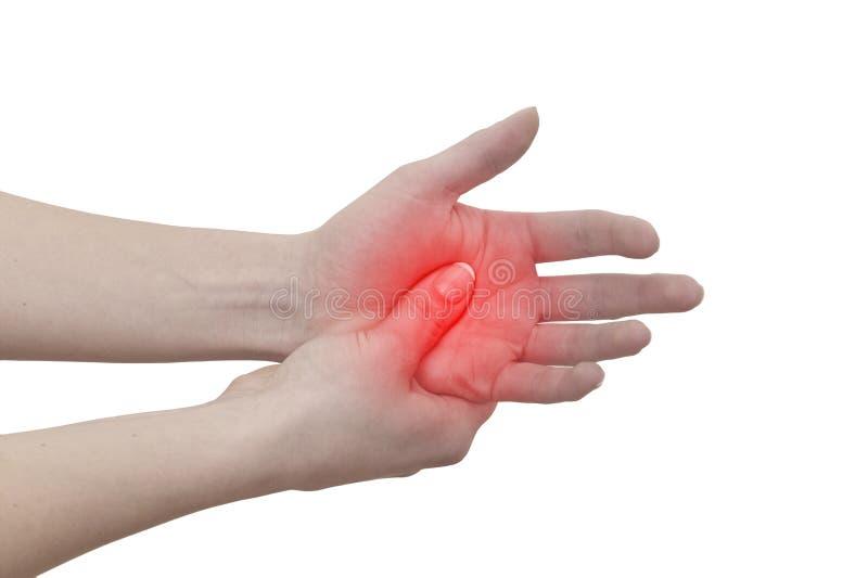 Akut smärta i en man gömma i handflatan. Kvinnlig innehavhand till fläcken av gömma i handflatan-ac arkivfoton
