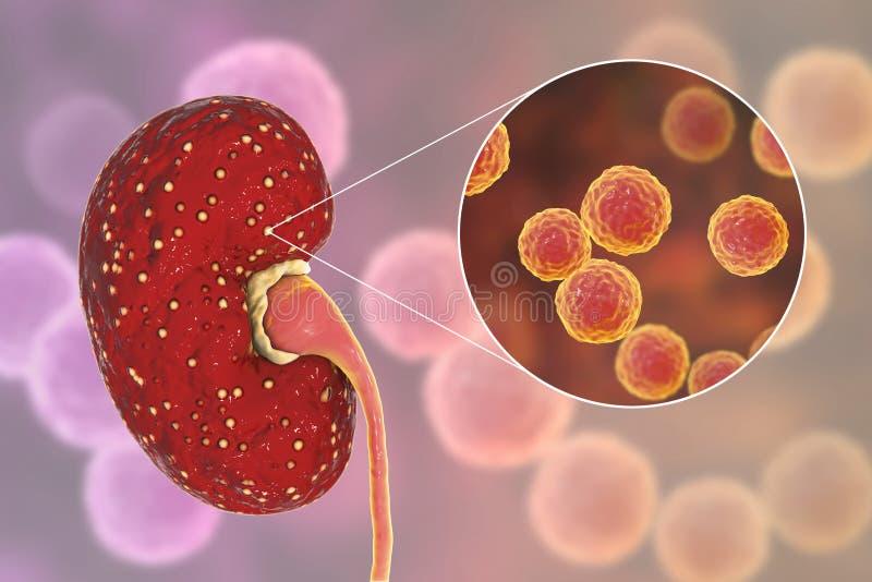 Akute Pyelonephritis, medizinisches Konzept und Großaufnahme von Bakterien Enterokokke stockfotos