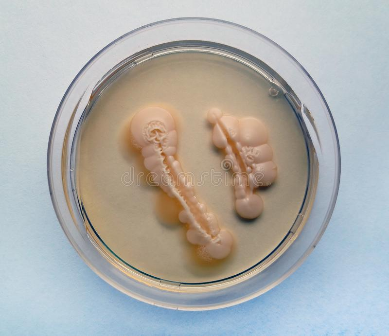 Albicans de la candida crecidos en una placa de Petri imágenes de archivo libres de regalías