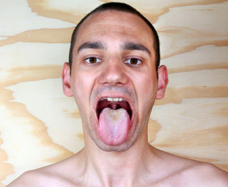 Albicans de la candida de la lengua de la infección imagen de archivo libre de regalías