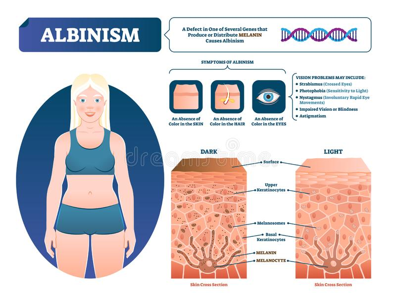 Albinism vector illustration. Labeled medical melanin pigment loss scheme. Genetic problem with skin, eyes, eyebrows and hair color symptoms. Compared normal vector illustration