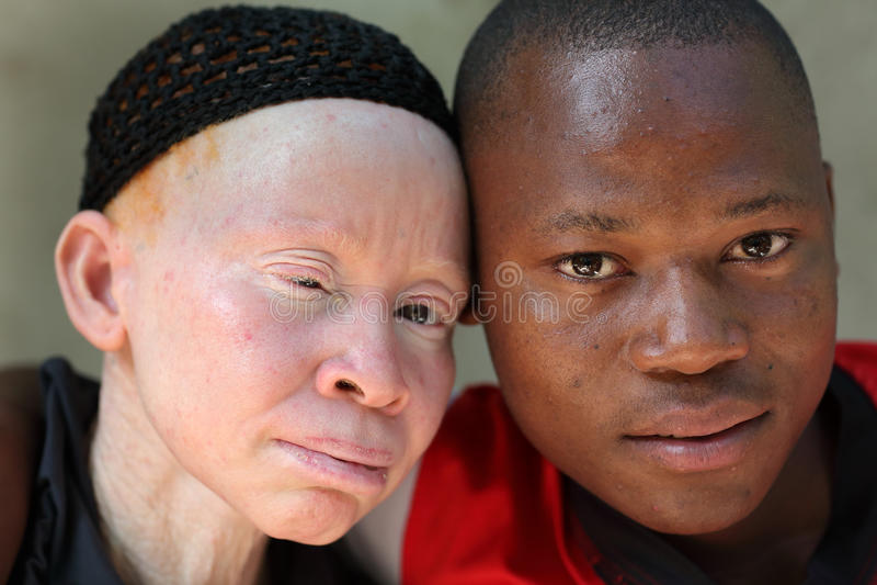 Albino μητέρα και γιος σε Ukerewe, Τανζανία στοκ εικόνες