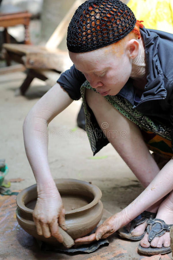 Albinokvinna i Ukerewe, Tanzania royaltyfri foto