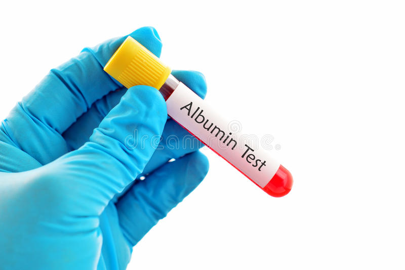 Albumin test. Blood sample for albumin test royalty free stock photos