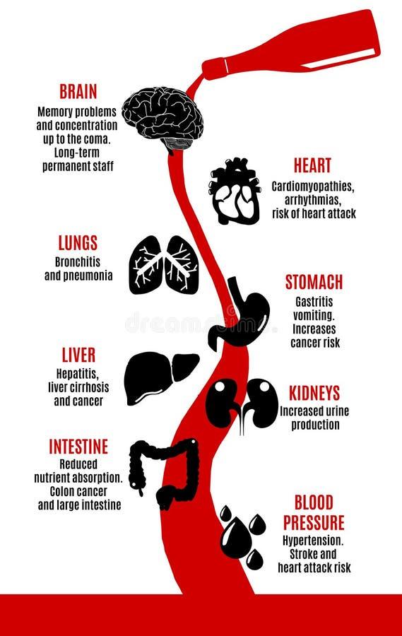 Alcohol bijwerkingen voor menselijk lichaam royalty-vrije illustratie
