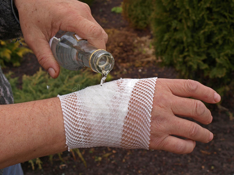 Download Alcohol compress stock photo. Image of bandaged, bump - 24500262