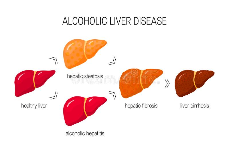 Alcoholic Hepatitis Stock Illustrations – 138 Alcoholic