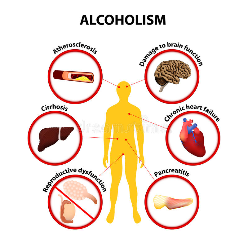 Alcoholism. infographic. Alcoholism. Some of the possible long-term effects of alcohol an individual may develop: atherosclerosis, cirrhosis, pancreatitis stock illustration