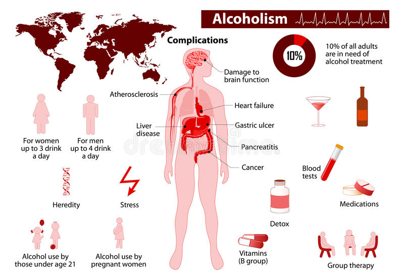 Alcoholism infographic. Some of the possible long-term effects of alcohol. Medical Infographic set elements and symbols for design stock illustration
