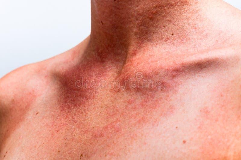 Alergia de Sun foto de archivo libre de regalías