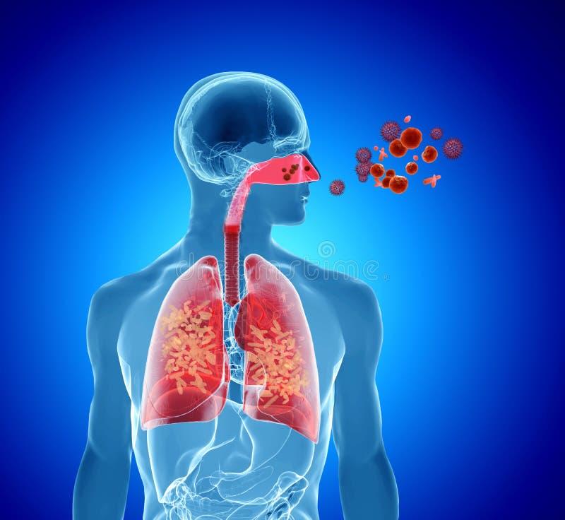 Alergia del polen/infección de la gripe de la fiebre de heno imagen de archivo