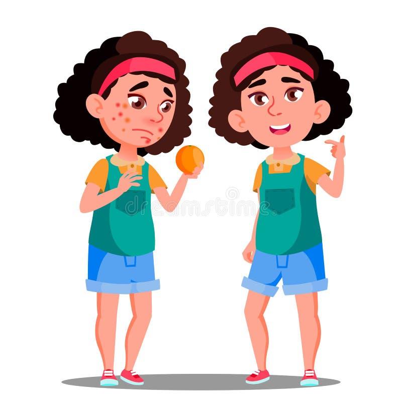 Alergiczna reakcja, Smutna dziewczyna Z rewolucjonistką Dostrzega Trzymać Pomarańczowego wektor Odosobniona kreskówki ilustracja ilustracja wektor