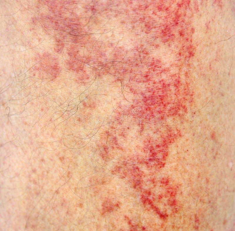Alergiczny kontaktowy dermatitis przy golenią obrazy royalty free