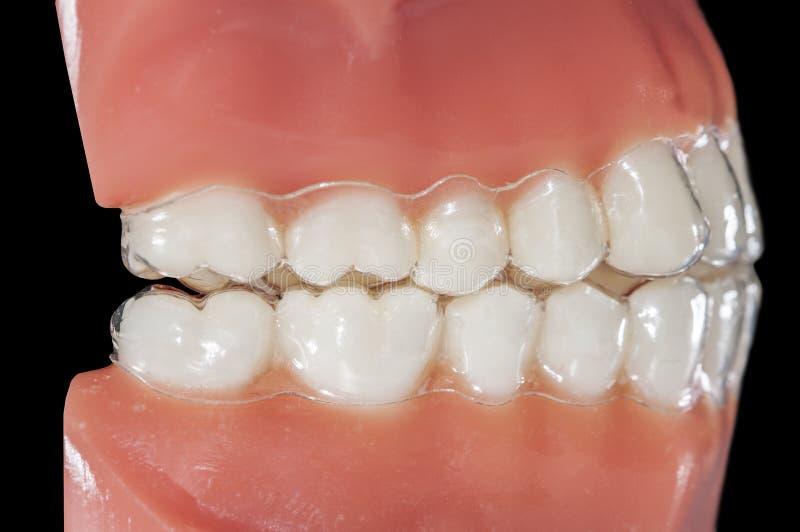 Aligner ortodontico invisibile per il bruxismo di trattamenti immagini stock