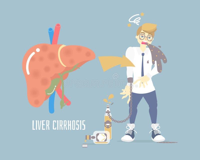 Alkoholizm pijący mężczyzny buchanie, mieć dizziness, trzyma butelkę alkohol, opieka zdrowotna, alkoholiczka, wątrobowej marskośc ilustracji
