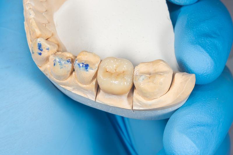 All-ceramic crowns of teeth close-up on a plaster model of the jaw. Close-up macro in the hands of a doctor. All-ceramic crowns of teeth close-up on plaster royalty free stock image