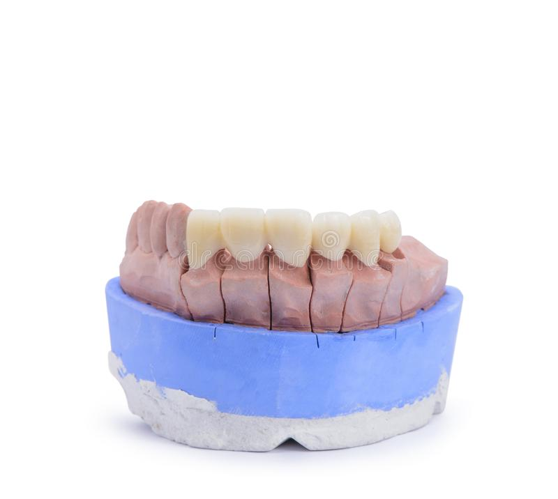 All ceramic highly aesthetic dental bridge and crown on gypsum model from labotary.  stock photos