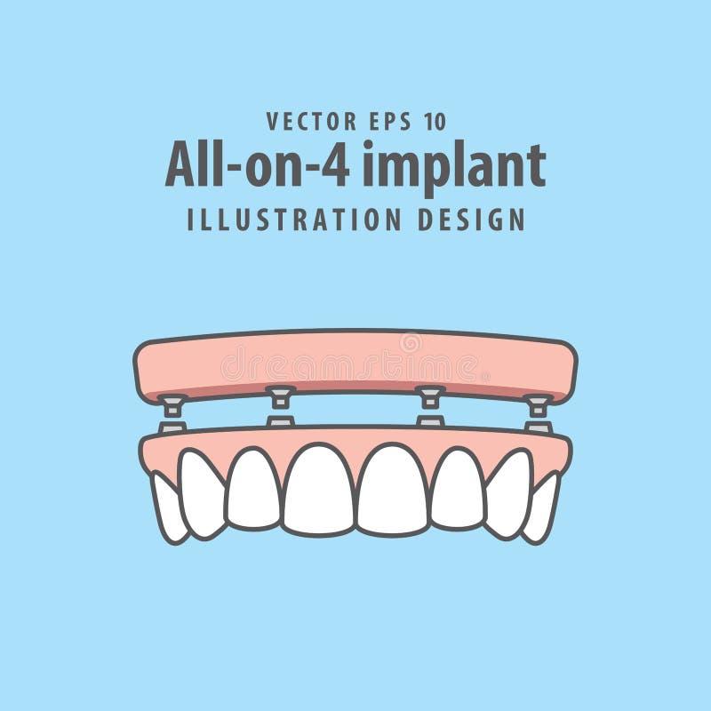Alle-op-4 implant illustratievector op blauwe achtergrond tand royalty-vrije illustratie