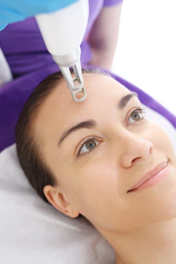 Alleggerimento del laser delle lesioni pigmentate sul fronte immagini stock