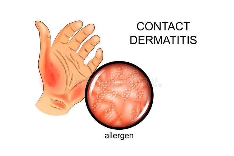 Allergen na skórze Alergia, dermatologia ilustracji