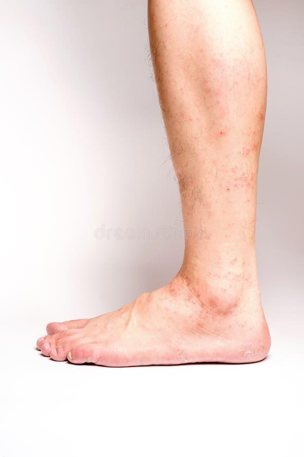 Allergic rash dermatitis eczema skin of patient legs. On white background stock photo