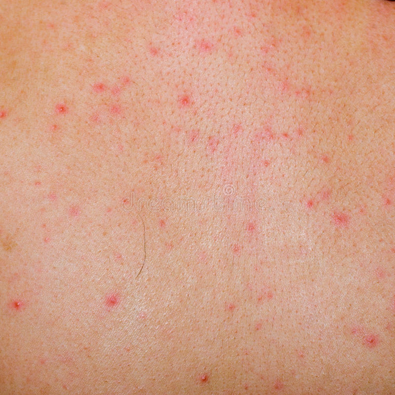 Download Allergic Rash Dermatitis Skin Stock Photo - Image: 20333124