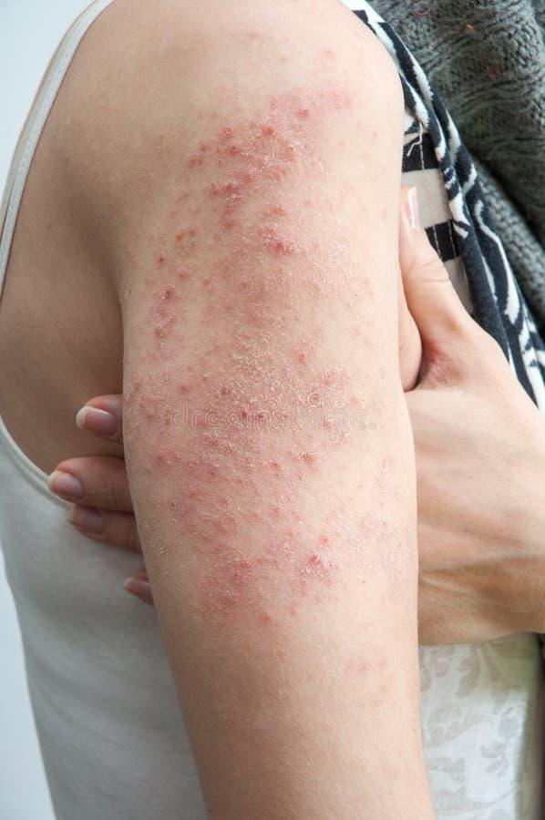 Allergic rash dermatitis stock photos