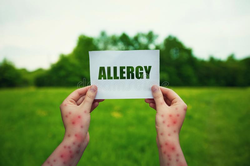 Allergic woman hands holding a paper sheet with allergy text over a green field natural background. Different symptoms of eczema, stock photos