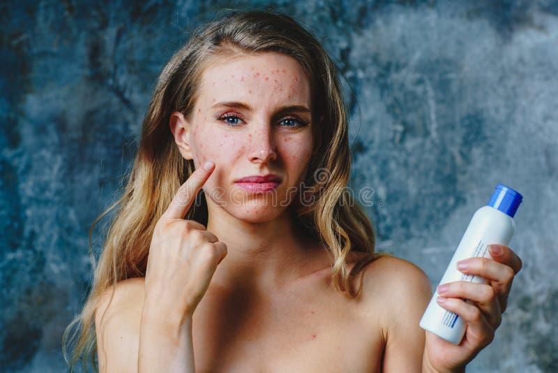 Allergie op gezichtsroom stock fotografie