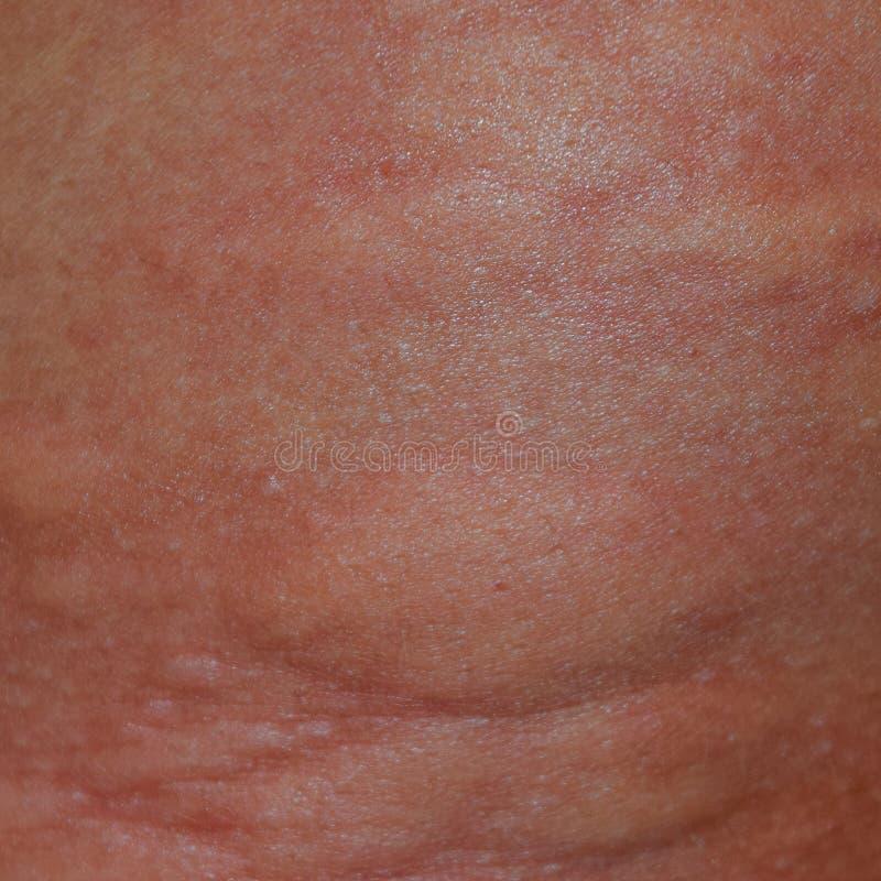 Allergihud tillbaka och sidor Allergiska reaktioner på huden i form av bulnad och royaltyfria bilder