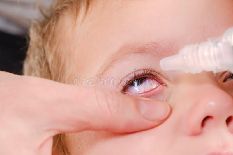 Allergique rouge d'allergie et de conjonctivite d'enfant d'oeil, enfance images libres de droits