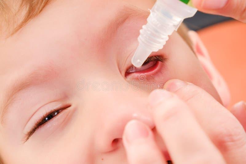 Allergique rouge d'allergie et de conjonctivite d'enfant d'oeil, santé injectée de sang image stock
