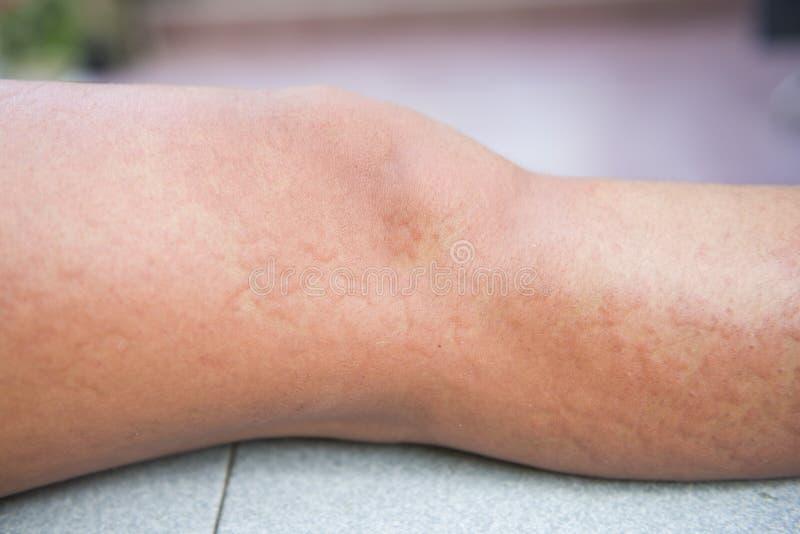 Allergische die reacties door urticaria worden veroorzaakt royalty-vrije stock foto