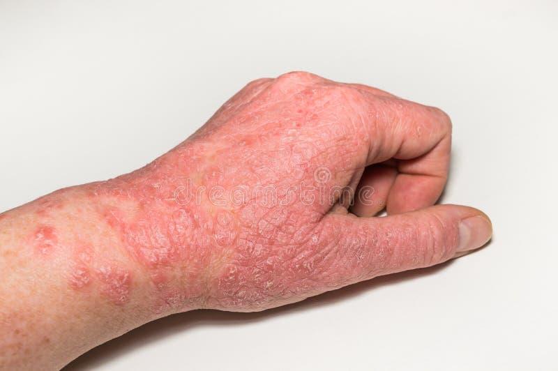 Allergische huidletsels van de hand met barsten, ontsteking en het afschilferen Psoriasis, atopic dermatitis, eczema huidprobleme stock foto