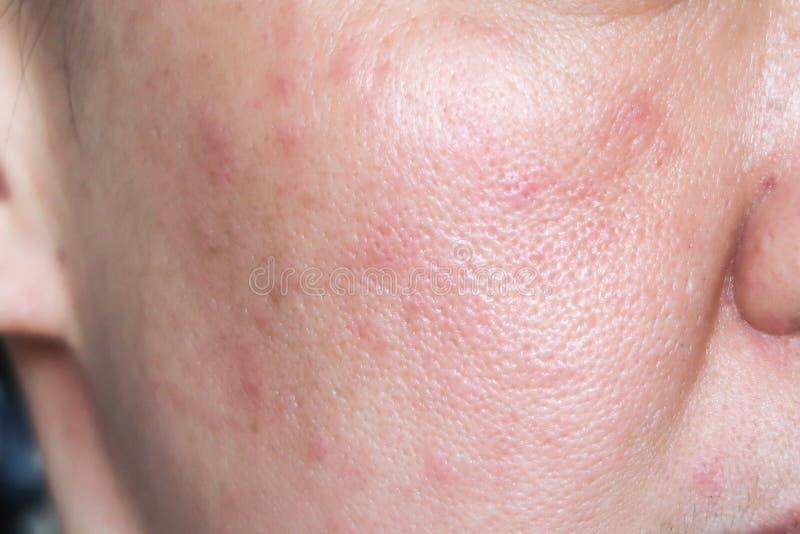 Allergie Nüsse Hautausschlag