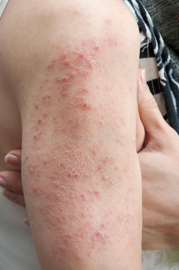 Allergisk överilad dermatit royaltyfria foton