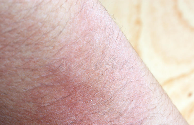 Allergisk överilad dermatiteksemhud royaltyfria foton