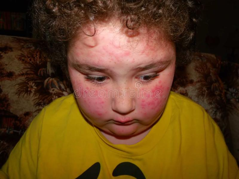 Allergisk reaktion royaltyfri fotografi