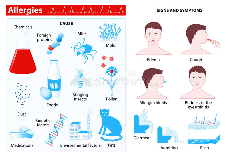 Allergy. infographic vector illustration
