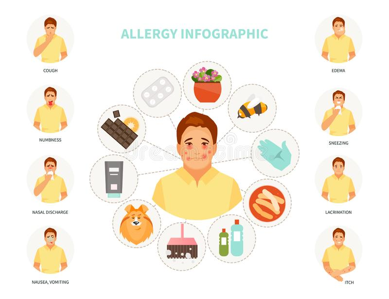 Allergy infographic vector. Major allergens and allergy symptoms. Vector medical infographics royalty free illustration