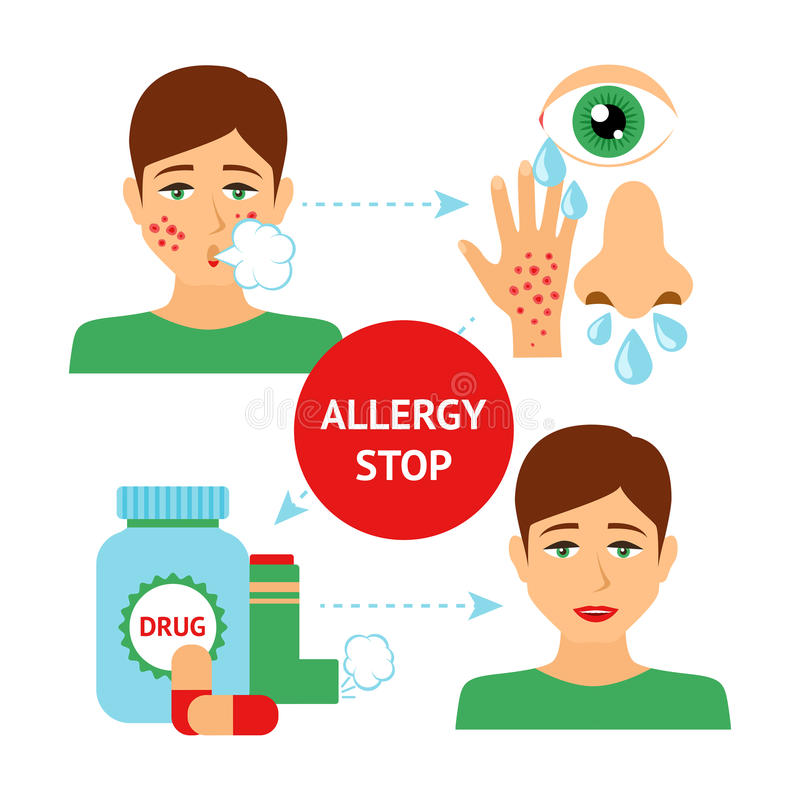 Allergy Prevention Concept. With sick and healthy person symptoms and drugs vector illustration vector illustration