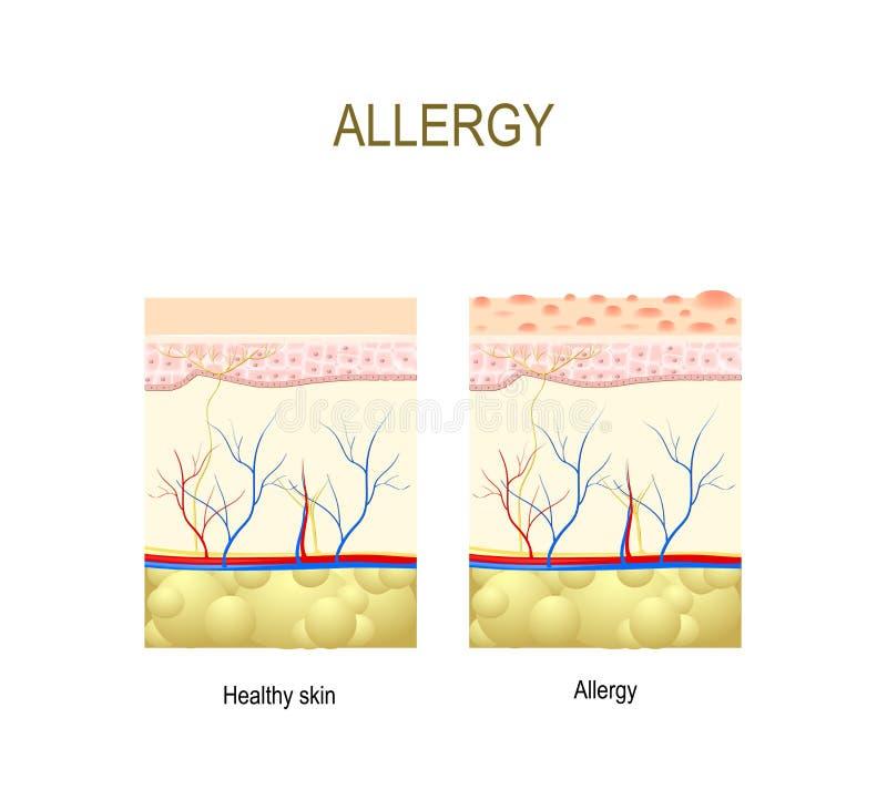 allergy saudável e pele com reação alérgica ilustração do vetor