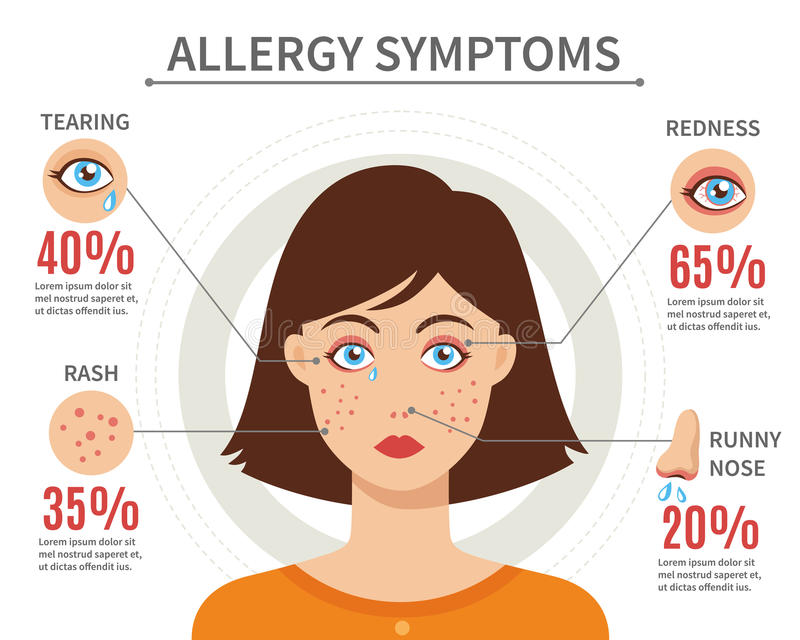 Allergy Symptoms Flat Style Concept vector illustration