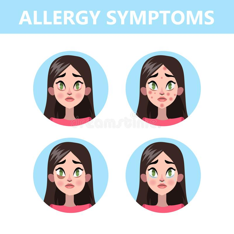 Allergy symptoms infographic. Runny nose and eye redness royalty free illustration