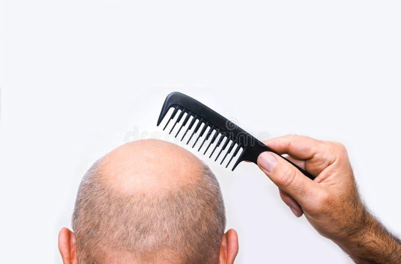 Alopécie ou perte des cheveux humaine - main adulte d'homme tenant le peigne image libre de droits