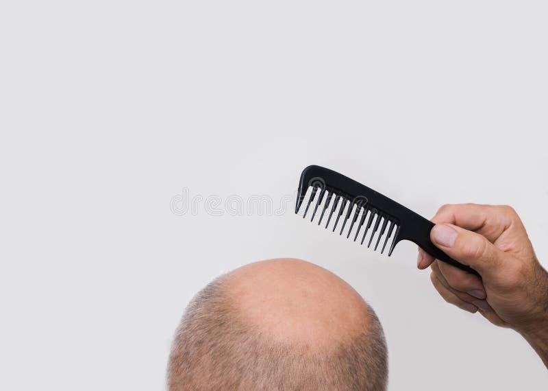 Alopécie ou perte des cheveux humaine - main adulte d'homme tenant le peigne images stock