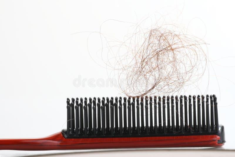 Alopecia immagine stock libera da diritti