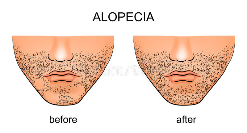 Alopecia areata on the male chin. Illustration of alopecia areata on the male chin vector illustration