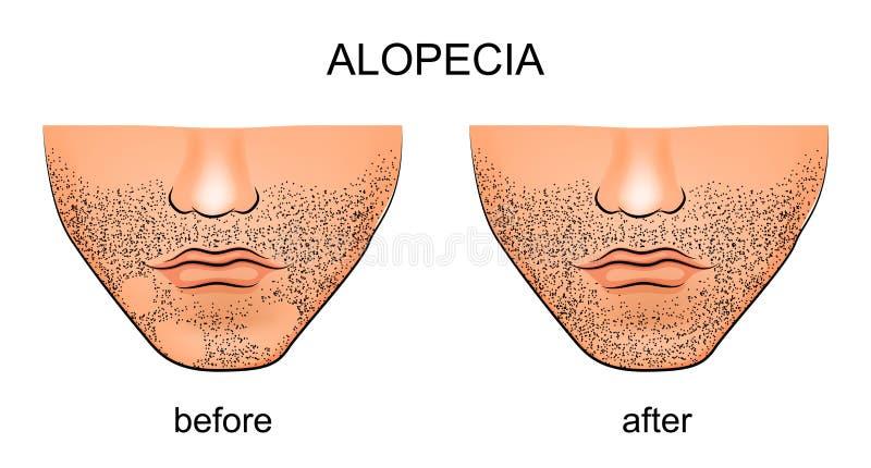 Alopecia areata sul mento maschio illustrazione vettoriale